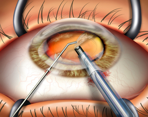 Cataract-surgery-India
